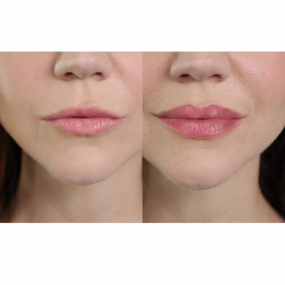 Lip Boost gloss de labios efecto volumen