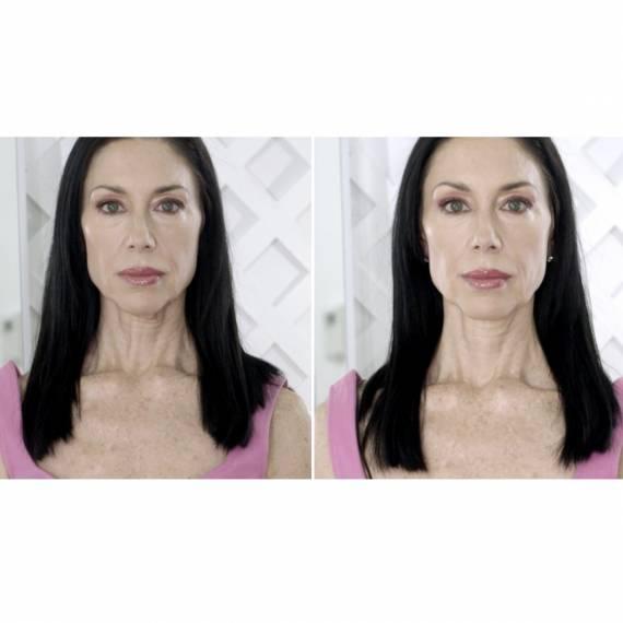TNSlift 60 tratamiento corporal antiedad